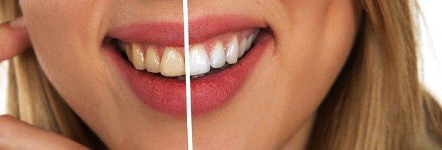 איך לבחור רופא שיניים?